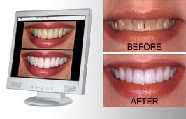 Hitech Cosmetic Imaging